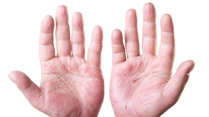 Как отличить дерматит от волчанки thumbnail